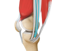 ACL Reconstruction Procedure – Hamstring Tendon